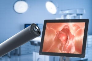 Medical technology concept with 3d rendering endoscope with monitor display intestine